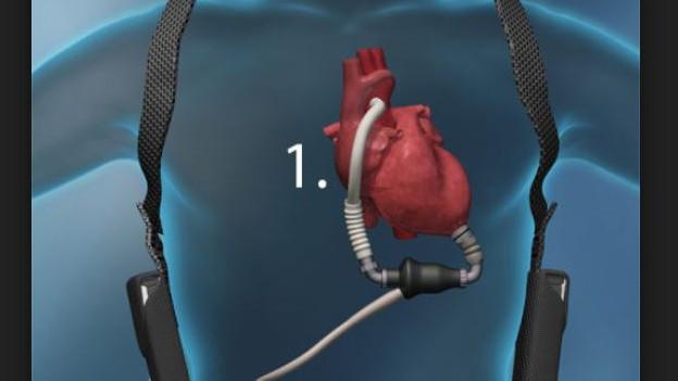 Künstliches Herz: Erstmals tauglich für einen Menschen.