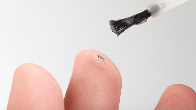 Behandlung einer Fingerwarze.