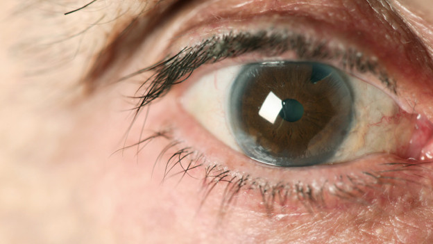 Auge mit Grauem Star.