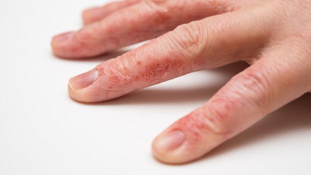 Eine Hand mit Ausschlag an den Fingern.
