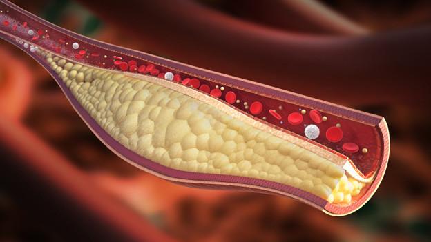 Querschnitt eines Blutgefässes an dessen Rand sich Cholesterin angesammelt hat.