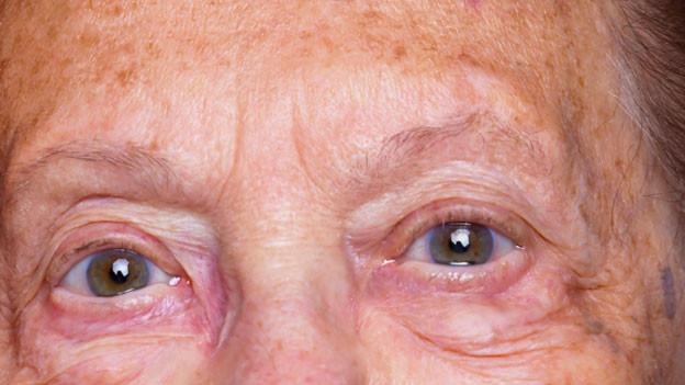 Augenpaar einer älteren Dame mit Altersflecken auf der Stirn.