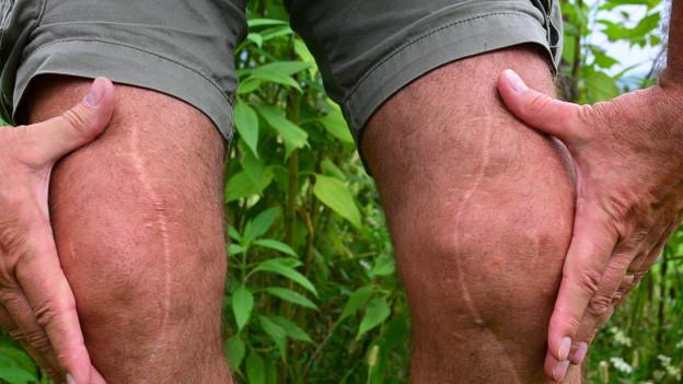 Ein Beinpaar in kurzen Hosen. Über beide Knie verläuft eine grosse Narbe.