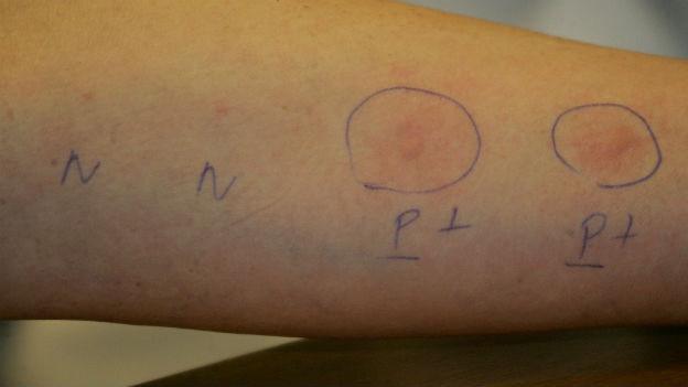 Rote Pusteln auf einem Arm, die mit Kreisen und Buchstaben markiert sind.