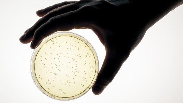 Hand hält Petrischale mit Bakterien.