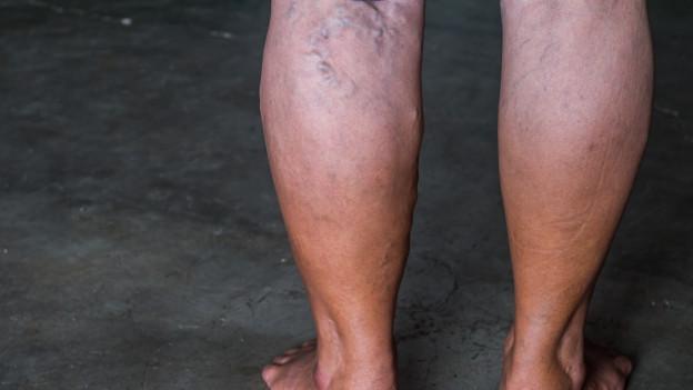 Beine mit Krampfadern.