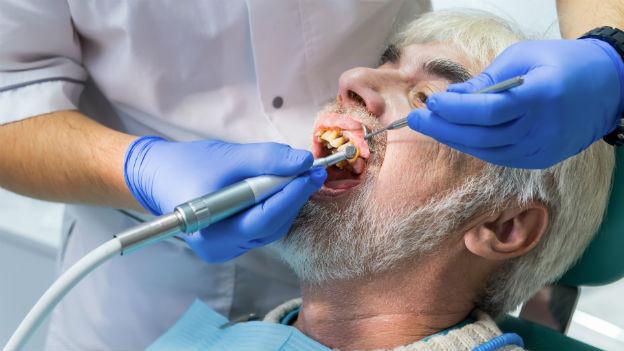 Mann beim Zahnarzt.