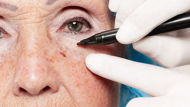 Eine ältere Frau beim Schönheitschirurgen.