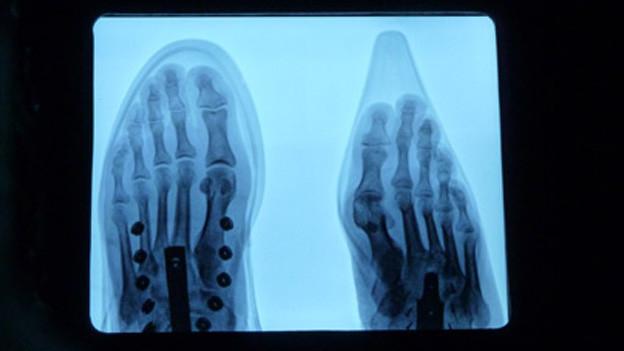 Zwei Füsse – mit und ohne Schuh – auf einem Röntgenbild.